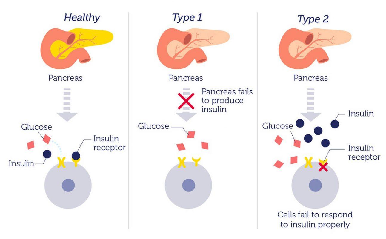 Diabetes typ 2 wundheilung